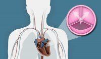 αλεξανδρος δεληγεωργης καρδιολογος αορτικη στενωση παλαιό φάληρο